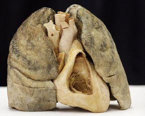 """Not exactly peak performance -- a smoker's dissected heart and lungs were displayed in Mexico City in 2006 to kick off the opening of the exhibit """"The Human Body."""""""
