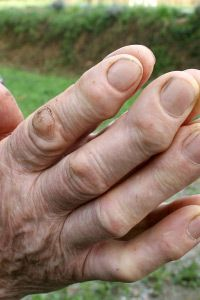 Skin Problems Image Gallery Warts may be unsightly, but the