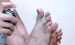 The fungus that causes athlete's foot is one of the most common.