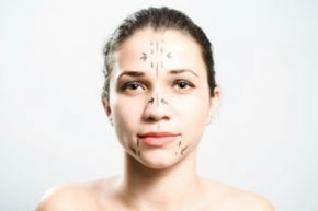 How young is too young for plastic surgery?
