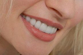 Veneers can make you look like you have a perfect smile.