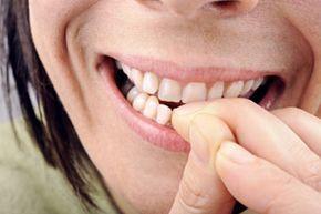 You should give up bad habits like biting your fingernails before you get veneers.