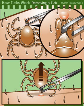 Remove ticks by grasping them with tweezers as close to the skin as possible and pulling straight out.