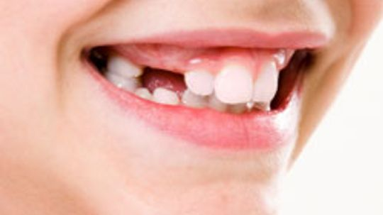 How are tooth roots removed?