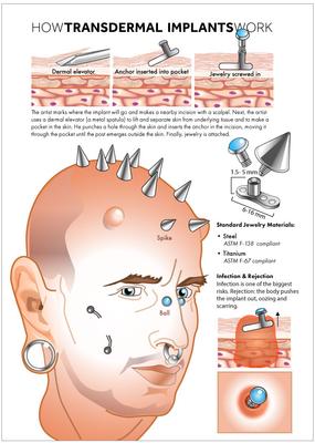 The transdermal implant procedure