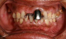 A person suffering from the symptoms of trench mouth should see a dentist immediately because it can spread to the cheeks, lips or jawbone if left untreated.