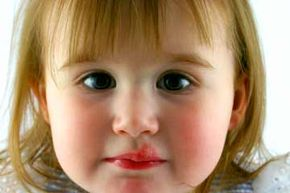 Fever blisters, also known as cold sores, are caused by the type 1 herpes simplex virus.