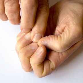 Personal Hygiene Image Gallery Repairing cracked fingernails takes time. See more personal hygiene pictures.