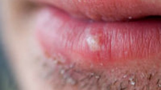 How to Treat Sun Blisters on Lips
