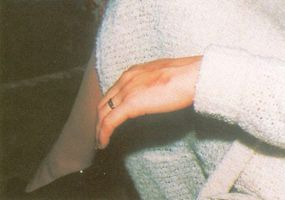 More than three months after a green beam from a UFO struck Denise Bishop in, the burn on her hand could still be seen.