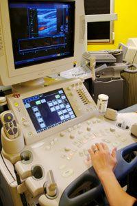 An ultrasound machine