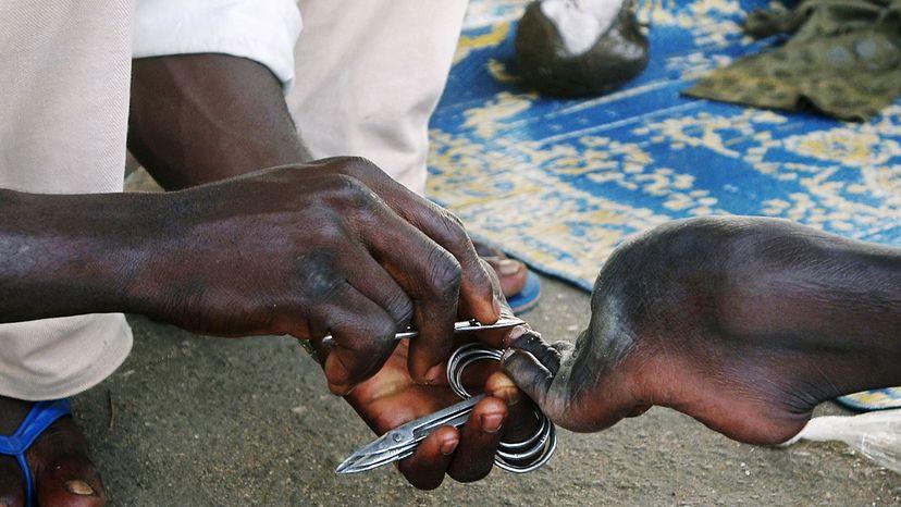 man with polio, Nigeria