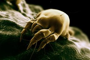 Can your vacuum reduce your allergy symptoms by removing dust mites -- like the the one shown here -- from your mattress?