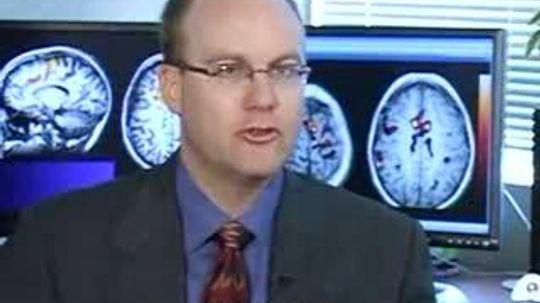 What is cerebral edema?
