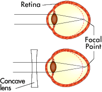 Figure 2: If you are nearsighted, the image comes into focus before it hits your retina (top). A concave lens can push the focus back (bottom).