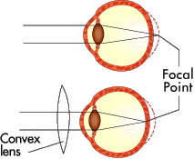 Figure 3: If you are farsighted, the image doesn't come into focus before it hits your retina (top). A convex lens can bring the focus forward (bottom).