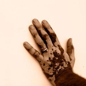 Man's hand affected by vitiligo, or depigmentation of skin.