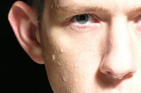 Hyperhidrosis is defined as truly excessive sweating. See more skin problem pictures.