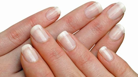 What are the white marks on my nails?