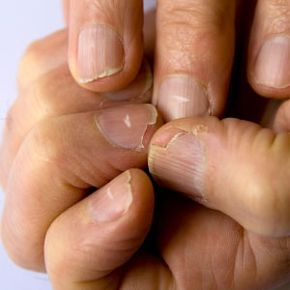 Personal Hygiene Image Gallery A condition called leukonychia can cause white spots on fingernails. See more personal hygiene pictures.