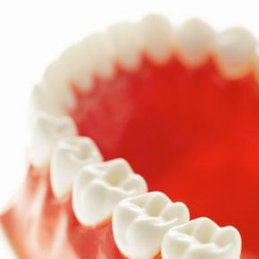 See all those nooks and crannies? They're prime breeding ground for tooth decay.