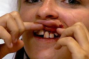 While on the golf course with her boyfriend, the patient receives a golf ball straight to the mouth.