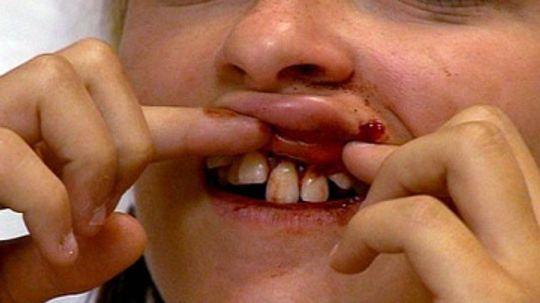 Coping With Dental Emergencies Pain and Broken Teeth