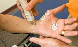 A chiropractor is performing a distal median nerve NCV (Nerve Conduction Velocity) test. Distal median nerve dysfunction, a type of peripheral neuropathy, affects the movement or sensation in the hands.