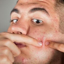 If you just can resist picking at your skin -- even when it bleeds or leaves redness or scarring -- you may be addicted to the behavior.