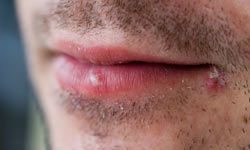 Cold sores are permanent, but thanks to advances in medicine, some antiviral medications can force a virus back into dormancy.