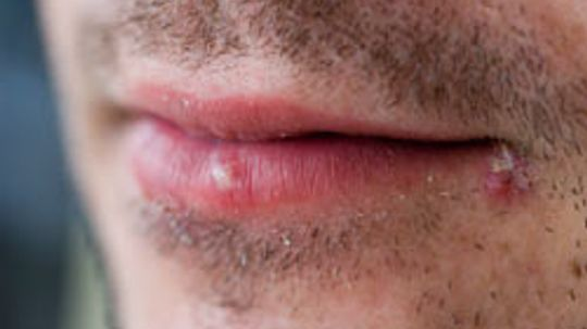 10 Causes and Treatments for Cold Sores