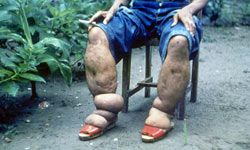 This person suffers from elephantiasis of the leg caused by filariasis.
