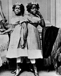 """Millie-Christine, conjoined twins known as """"The Two-Headed Nightingale."""""""