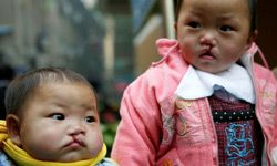 The number of Chinese babies born with birth defects such as cleft lip and palates, and extra fingers and toes, has increased by 6 percent each year. People are concerned that this traumatic condition is related to environmental pollution.