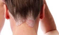 Psoriasis can affect any part of the body, including your scalp.