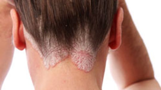 5 Treatments for Scalp Psoriasis