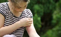 Irritated skin can itch, burn and frustrate your daily routine. Be aware of potential skin irritants around you. See more pictures of skin problems.