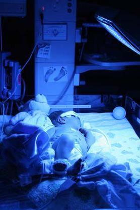 A jaundiced baby under phototherapy lights to break down the bilirubin