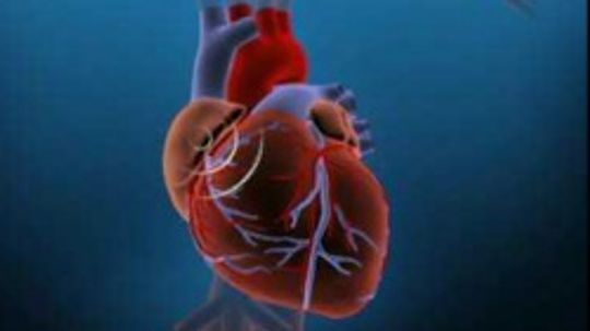 How common is CHD?
