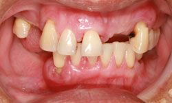 Trust us; you don't want to start losing your teeth.