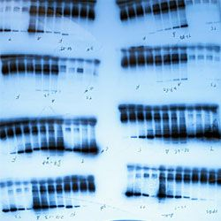 Rosalind Franklin's research was instrumental in discovering DNA's double helix.