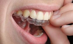 Invisalign isn't an option for kids who still have baby teeth.