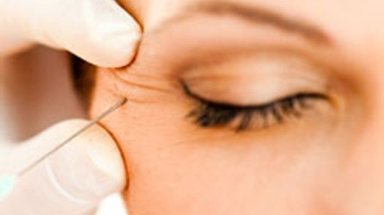 5 Home Treatments for Wrinkles