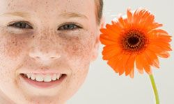Kids love collecting freckles on their noses, but adults feel differently about the brown blemishes. See more pictures of getting beautiful skin.