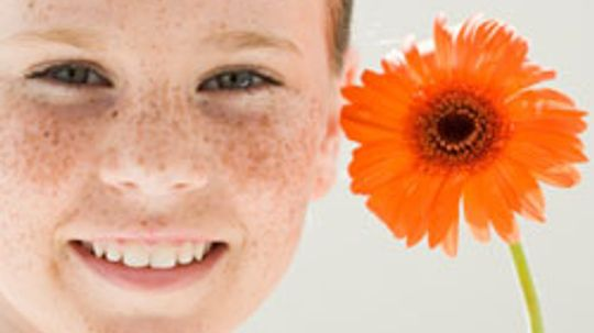 5 Tips for Minimizing Freckles