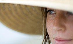Sunburns aren't the only danger of sun exposure. Learn how to minimize sun exposure for healthier skin.