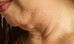 Facelifts and necklifts can remove unnecessary skin.