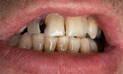 You may not be able to see your enamel, but unless you want your teeth to look like this, you better take care of it.
