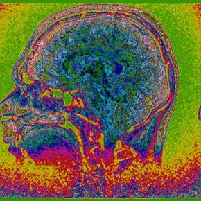A side-scan MRI of a human brain.