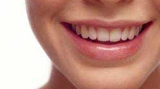 10 Tips for Battling Dry Lips